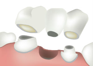 Dental Bridges | Everett Dental Associates | Dentist Everett, MA