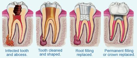 Root Canal Therapy | Dr. Covino | Dr. Serrano | Everett, MA Dentist