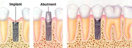 Implants Available | Everett Dental Associates | Peabody MA Dentist